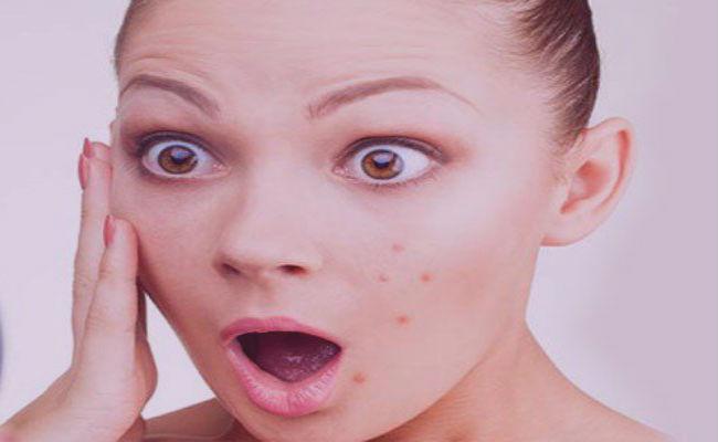 Alternativas caseras para el acné