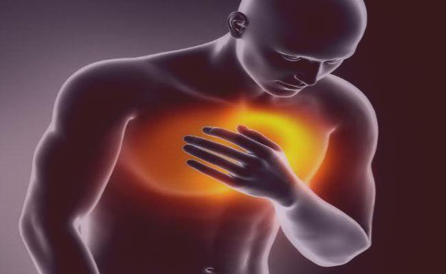 Síntomas de infarto