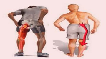 Ejercicios para el nervio ciático