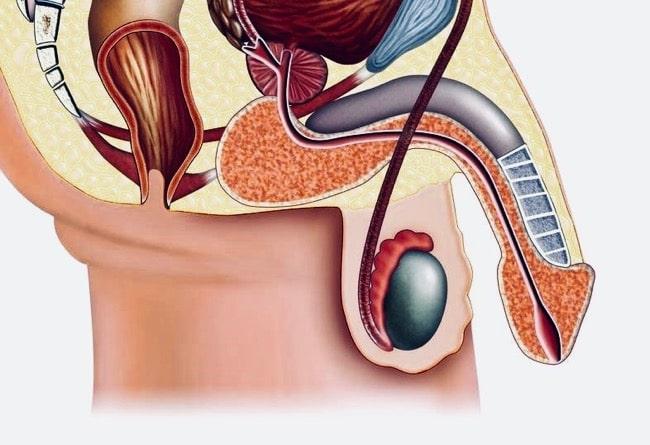 la erección de la prostatitis ausente